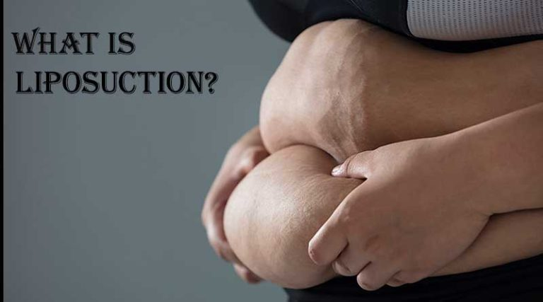 WHAT-IS-LIPOSUCTION