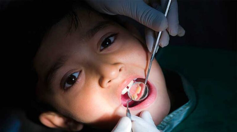 Five Questions for Best Dental Care